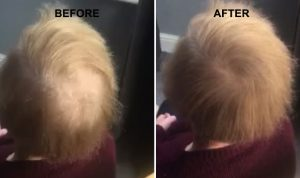 Hair Thickening Spray Results
